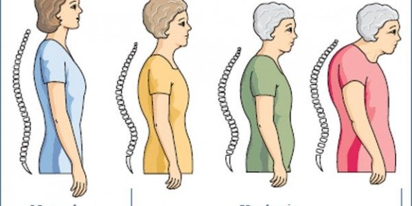 Loss of height may be a symptom of osteoporosis